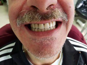 Стоматологично лечение на дистално двустранно неограничени дефекти в горна зъбна редица с металокерамичен мост и фрезпротеза 9