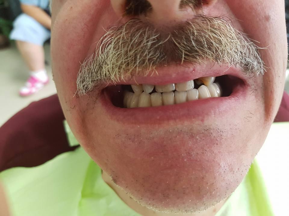 Стоматологично лечение на дистално двустранно неограничени дефекти в горна зъбна редица с металокерамичен мост и фрезпротеза