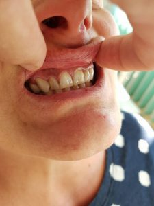 Стоматологично лечение с единични корони на предните горни 6 зъба и 2 по 2 блоккорони в страничният участък реализирани с 3 D ceramic 1