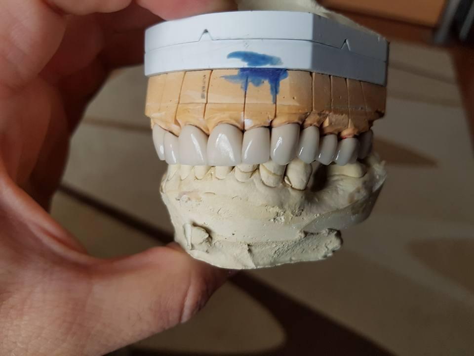 Стоматологично лечение с единични корони на предните горни 6 зъба и 2 по 2 блоккорони в страничният участък реализирани с 3 D ceramic 3