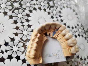 Стоматологично лечение с единични корони на предните горни 6 зъба и 2 по 2 блоккорони в страничният участък реализирани с 3 D ceramic 4