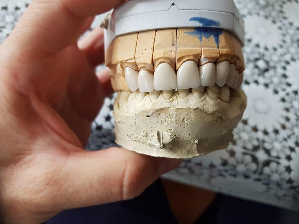 Стоматологично лечение с единични корони на предните горни 6 зъба и 2 по 2 блоккорони в страничният участък реализирани с 3 D ceramic 5