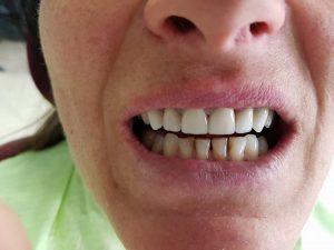Стоматологично лечение с единични корони на предните горни 6 зъба и 2 по 2 блоккорони в страничният участък реализирани с 3 D ceramic 6