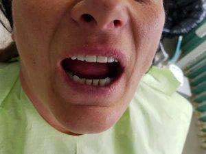 Стоматологично лечение с единични корони на предните горни 6 зъба и 2 по 2 блоккорони в страничният участък реализирани с 3 D ceramic 7