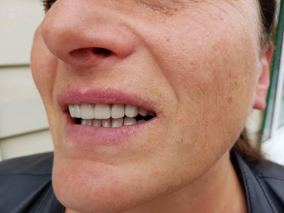 Стоматологично лечение с единични корони на предните горни 6 зъба и 2 по 2 блоккорони в страничният участък реализирани с 3 D ceramic 8
