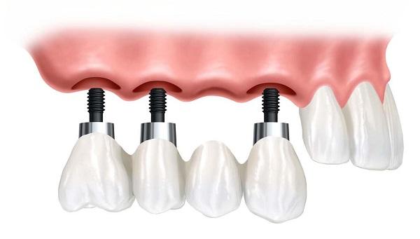 Зъбни импланти цена