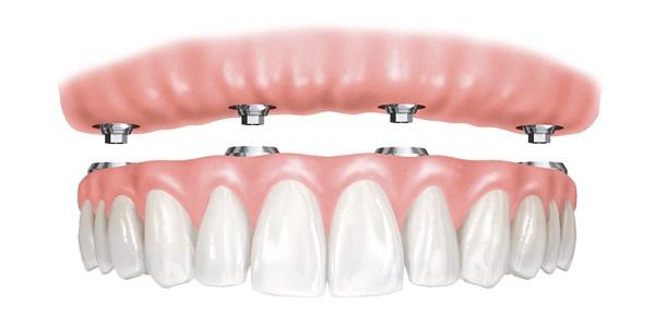 Зъбни импланти цени