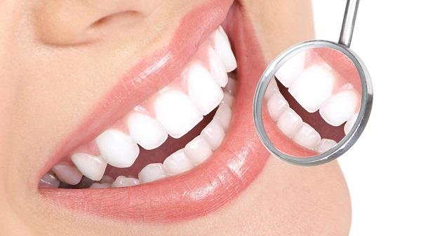 zubni-implanti-4