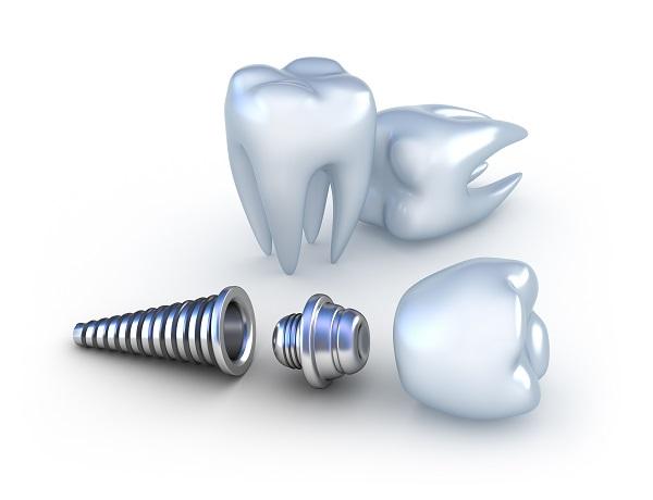 Зъбен имплант цена