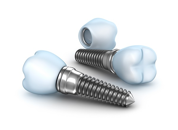 Цена за зъбен имплант