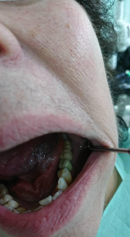 Имплатологично и ортопедично лечение при дистално неограничен дефект на Долна зъбна редица в ляво 5