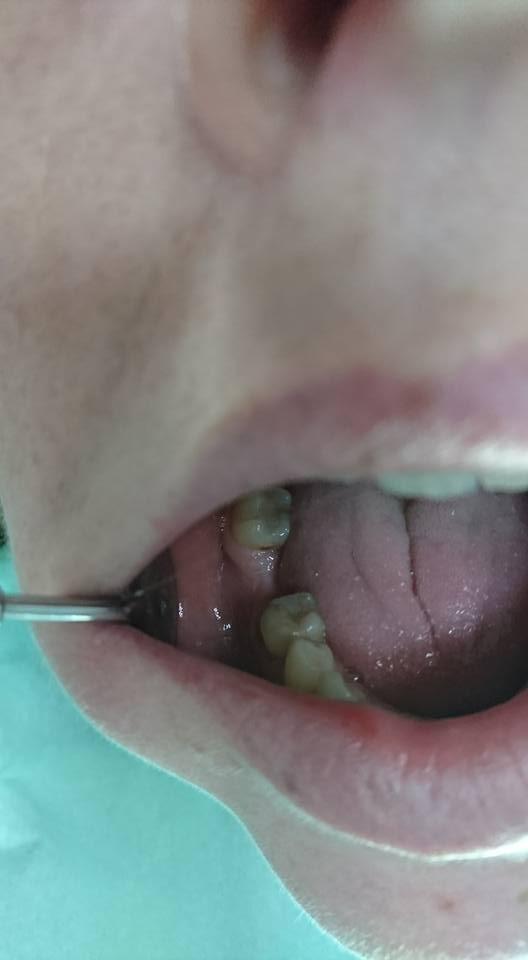 Поставяне на 2 импланта след екстракция на млечен зъб на долна челюст
