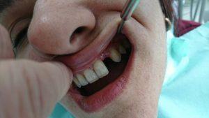 Решение при екстрахиран латерален резец на Горна челюст с помощта на зъб с висящо тяло 3D ceramic 1