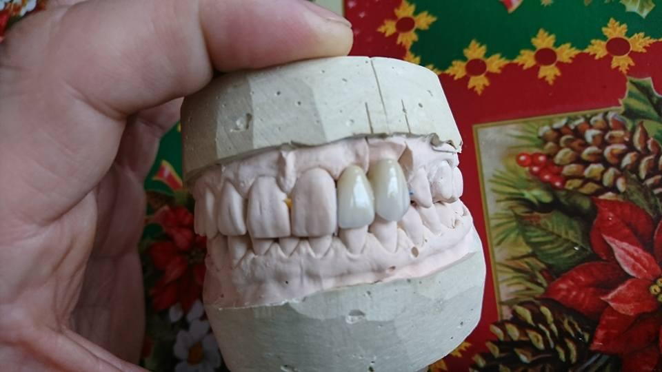 Решение при екстрахиран латерален резец на Горна челюст с помощта на зъб с висящо тяло 3D ceramic 2