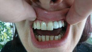 Решение при екстрахиран латерален резец на Горна челюст с помощта на зъб с висящо тяло 3D ceramic 5