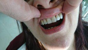 Решение при екстрахиран латерален резец на Горна челюст с помощта на зъб с висящо тяло 3D ceramic 6