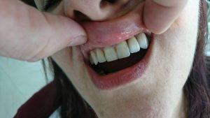 Решение при екстрахиран латерален резец на Горна челюст с помощта на зъб с висящо тяло 3D ceramic 7