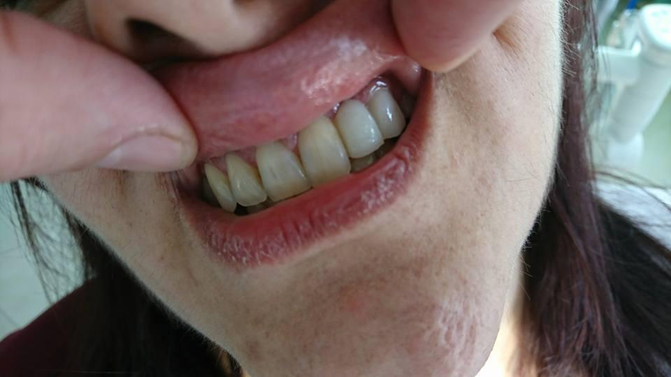 Решение при екстрахиран латерален резец на Горна челюст с помощта на зъб с висящо тяло 3D ceramic 8