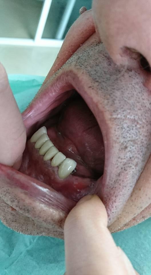 Стоматологично лечение с блоккорони във фронта с фрезпротеза в дистално двустранно неограничен дефект на долна зъбна редица 2