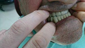 Стоматологично лечение с блоккорони във фронта с фрезпротеза в дистално двустранно неограничен дефект на долна зъбна редица 7
