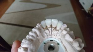 Стоматологично лечение с циркониеви коронки на ортодонска деформация на горни фронтални зъби