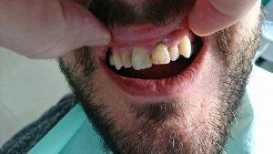 Стоматологично лечение с циркониеви коронки на ортодонска деформация на горни фронтални зъби 1