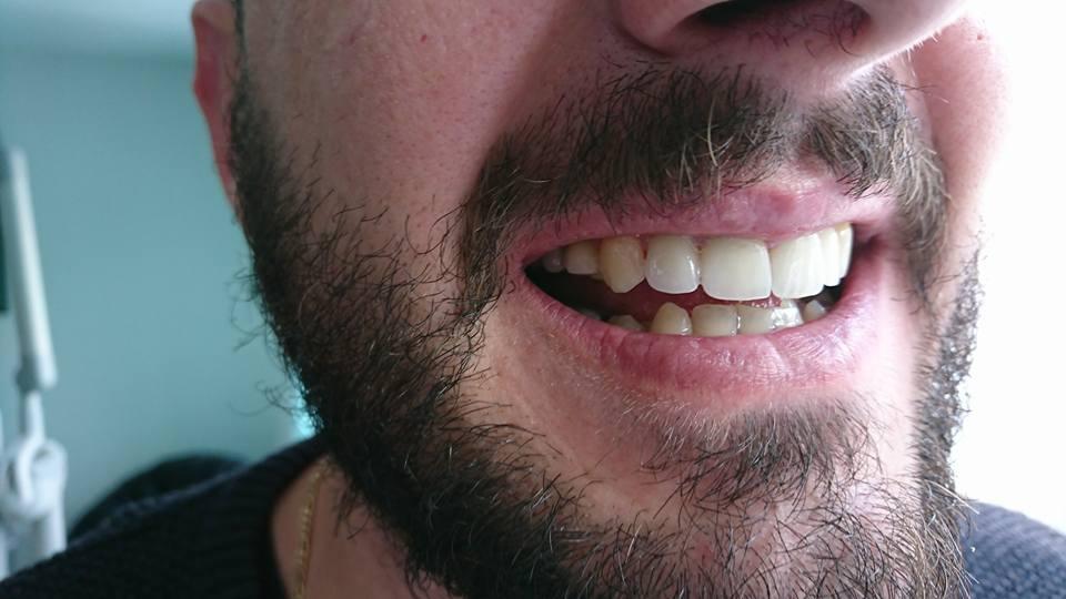 Стоматологично лечение с циркониеви коронки на ортодонска деформация на горни фронтални зъби 10