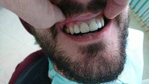 Стоматологично лечение с циркониеви коронки на ортодонска деформация на горни фронтални зъби 11