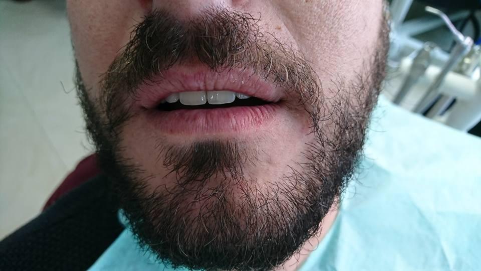 Стоматологично лечение с циркониеви коронки на ортодонска деформация на горни фронтални зъби 12