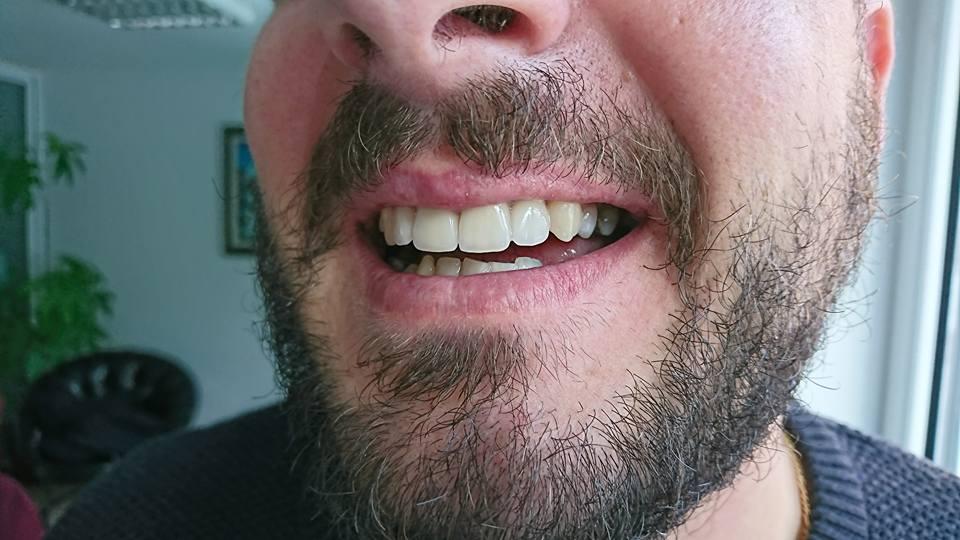 Стоматологично лечение с циркониеви коронки на ортодонска деформация на горни фронтални зъби 13