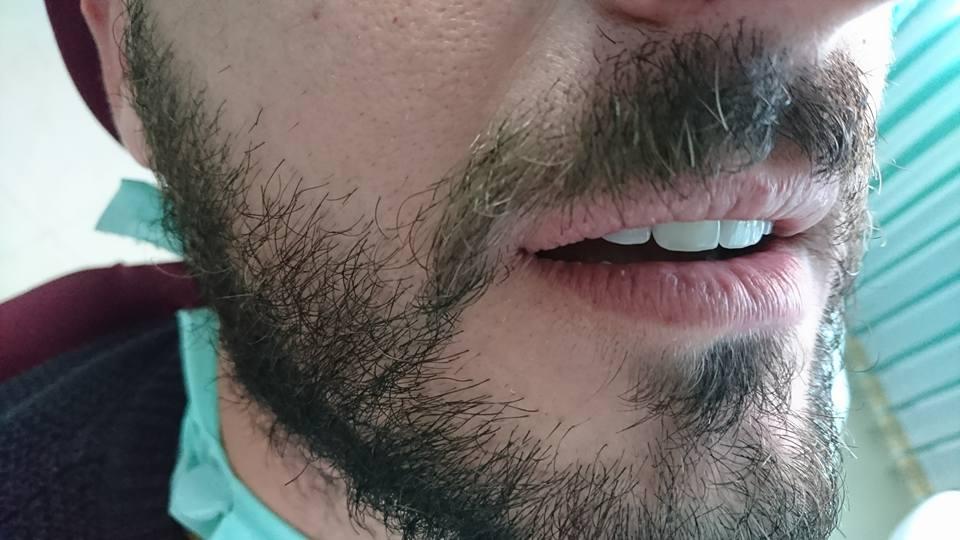 Стоматологично лечение с циркониеви коронки на ортодонска деформация на горни фронтални зъби 14