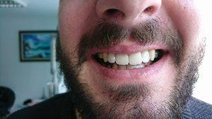 Стоматологично лечение с циркониеви коронки на ортодонска деформация на горни фронтални зъби 15