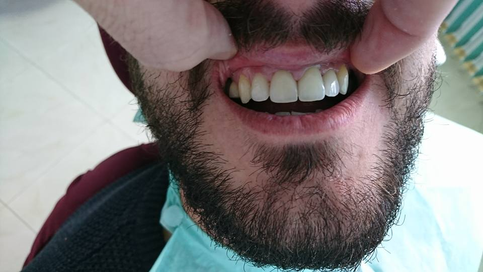 Стоматологично лечение с циркониеви коронки на ортодонска деформация на горни фронтални зъби 16