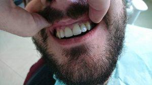 Стоматологично лечение с циркониеви коронки на ортодонска деформация на горни фронтални зъби 17
