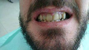 Стоматологично лечение с циркониеви коронки на ортодонска деформация на горни фронтални зъби 2