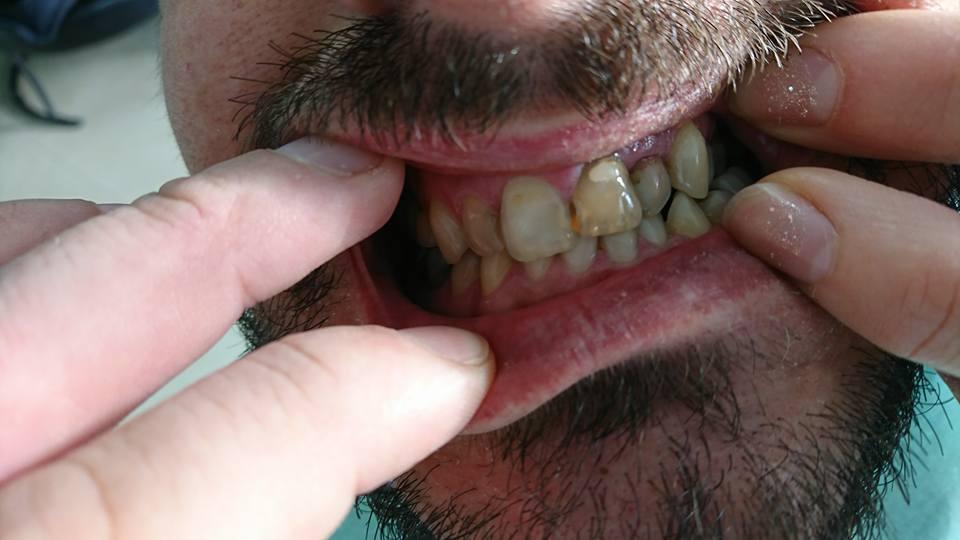 Стоматологично лечение с циркониеви коронки на ортодонска деформация на горни фронтални зъби 3