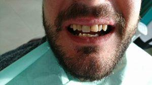 Стоматологично лечение с циркониеви коронки на ортодонска деформация на горни фронтални зъби 4