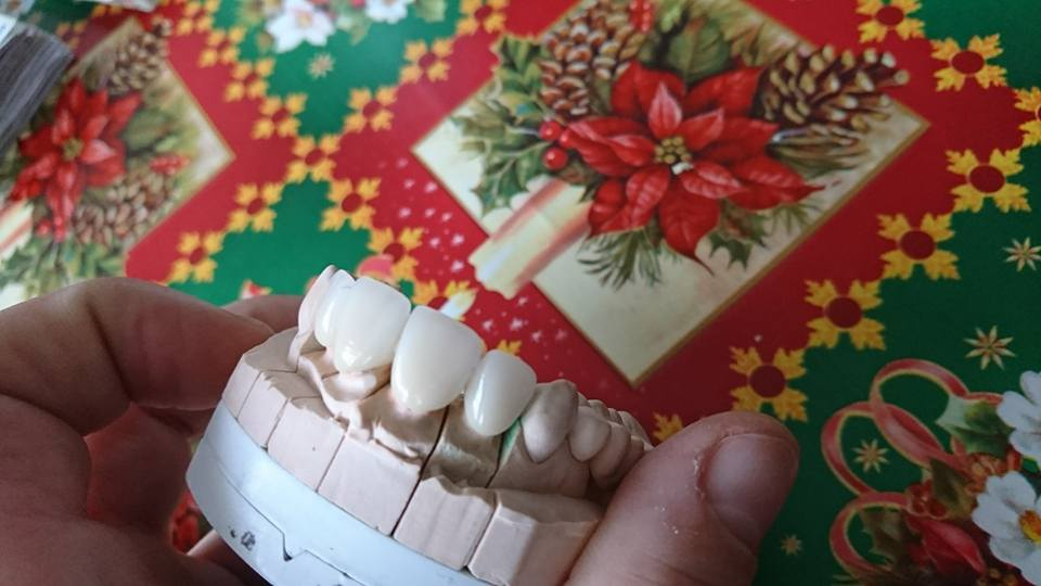 Стоматологично лечение с циркониеви коронки на ортодонска деформация на горни фронтални зъби 5