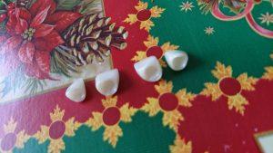 Стоматологично лечение с циркониеви коронки на ортодонска деформация на горни фронтални зъби 9