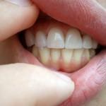 Монтираните фасети в стоматологичен кабинет на Д-р К.Димитров