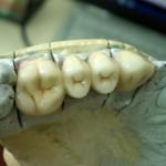 стоматолог кюстендил - четворен мост на горната челюст - Дентална клиника